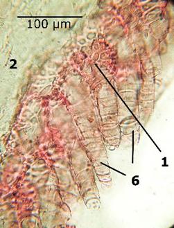 епідермальні клітини навколо мікропіле